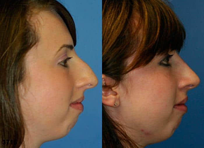 patient-11884-rhinoplasty-nosejob-before-after-5