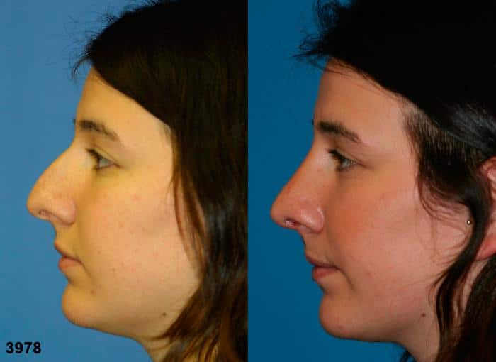 patient-11891-rhinoplasty-nosejob-before-after-5