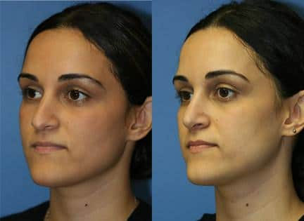 patient-11896-rhinoplasty-nosejob-before-after-2