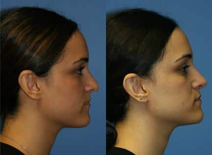 patient-11896-rhinoplasty-nosejob-before-after-3