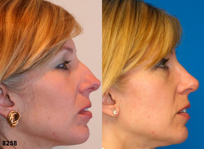 patient-11901-rhinoplasty-nosejob-before-after-2