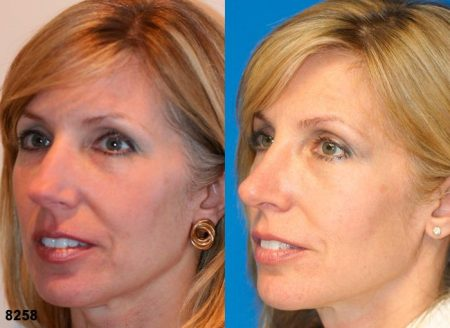 patient-11901-rhinoplasty-nosejob-before-after-3