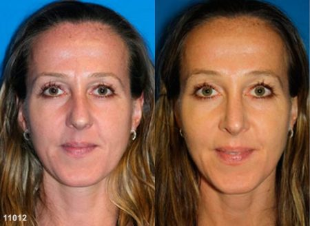 patient-11906-rhinoplasty-nosejob-before-after-3