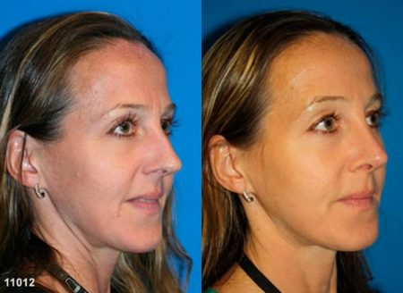 patient-11906-rhinoplasty-nosejob-before-after-4