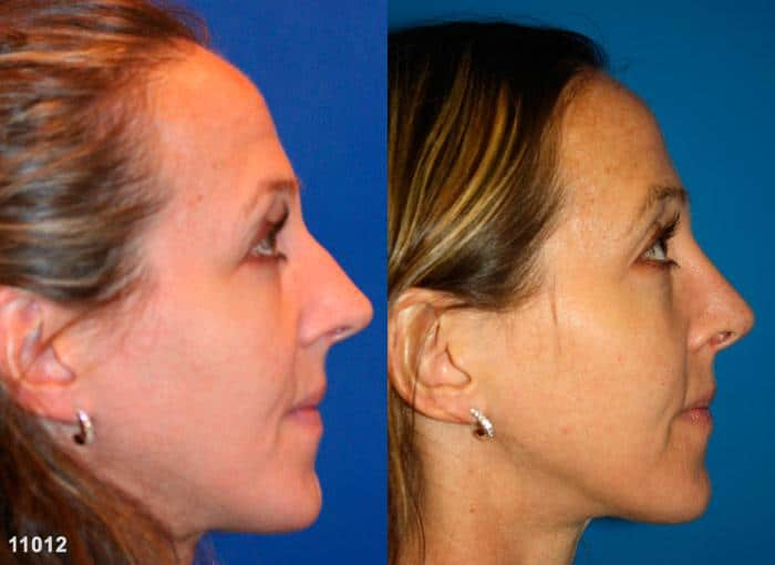 patient-11906-rhinoplasty-nosejob-before-after-5