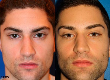 patient-11913-rhinoplasty-nosejob-before-after-3