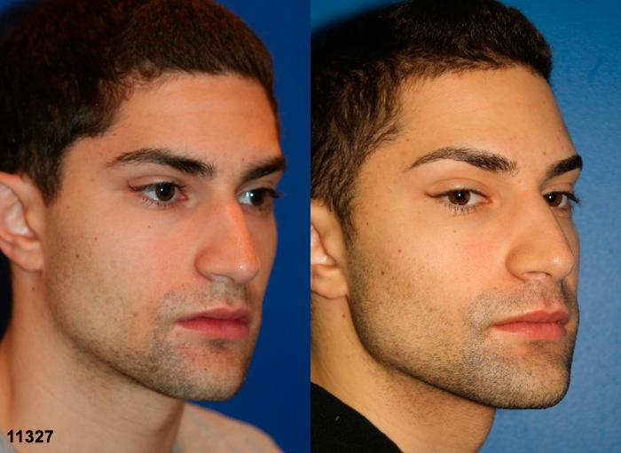patient-11913-rhinoplasty-nosejob-before-after-4