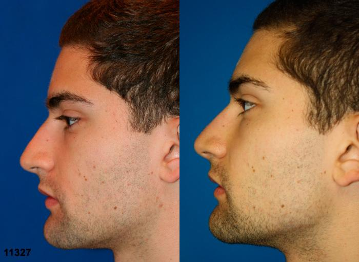 patient-11913-rhinoplasty-nosejob-before-after-5