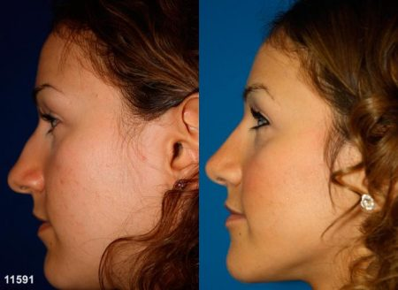 patient-11920-rhinoplasty-nosejob-before-after-1