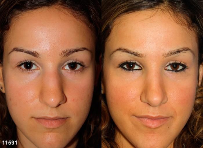 patient-11920-rhinoplasty-nosejob-before-after