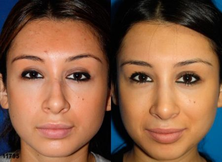 patient-11925-rhinoplasty-nosejob-before-after-3