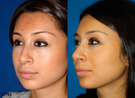 patient-11925-rhinoplasty-nosejob-before-after-4