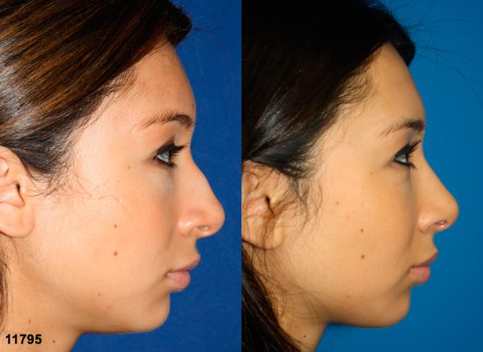 patient-11925-rhinoplasty-nosejob-before-after-5