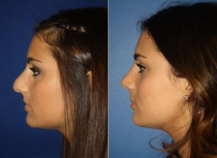 patient-11932-rhinoplasty-nosejob-before-after-1