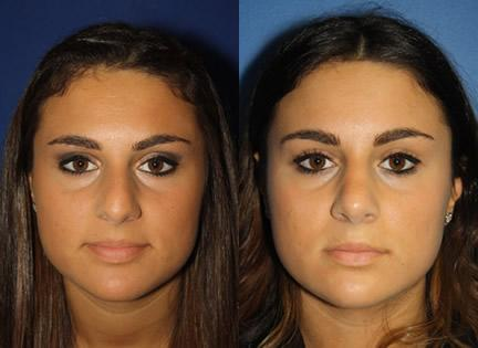 patient-11932-rhinoplasty-nosejob-before-after