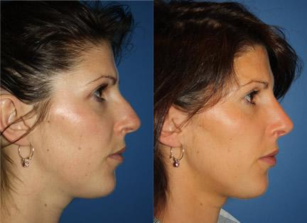 patient-11937-rhinoplasty-nosejob-before-after-1