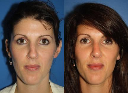 patient-11937-rhinoplasty-nosejob-before-after