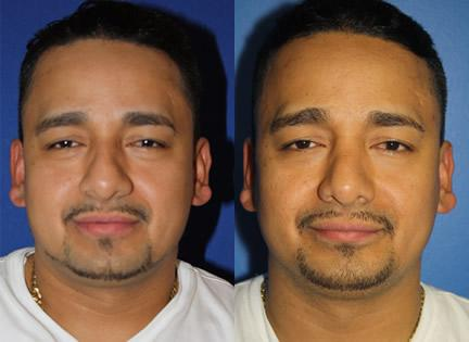 patient-11942-rhinoplasty-nosejob-before-after