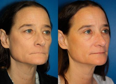 patient-11947-rhinoplasty-nosejob-before-after-1