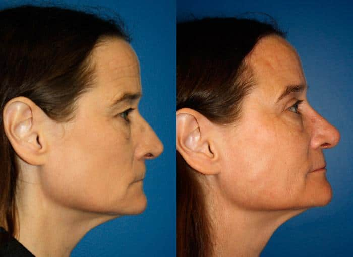 patient-11947-rhinoplasty-nosejob-before-after-2