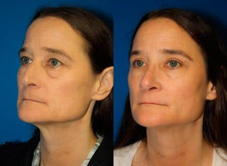 patient-11947-rhinoplasty-nosejob-before-after-3