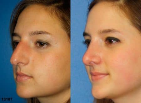 patient-11956-rhinoplasty-nosejob-before-after-1
