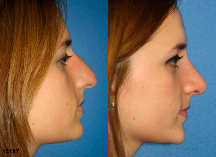 patient-11956-rhinoplasty-nosejob-before-after-2