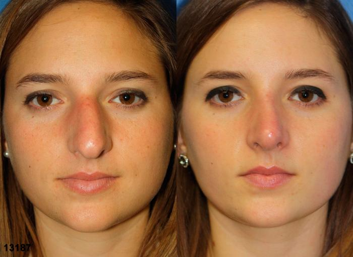 patient-11956-rhinoplasty-nosejob-before-after
