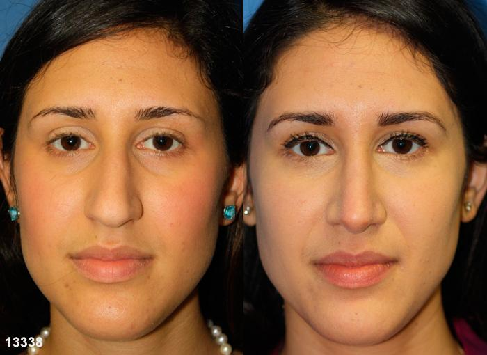 patient-11963-rhinoplasty-nosejob-before-after-3