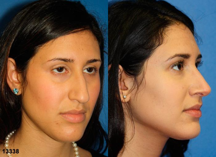 patient-11963-rhinoplasty-nosejob-before-after-4