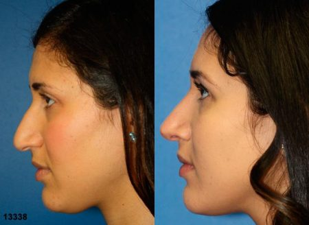 patient-11963-rhinoplasty-nosejob-before-after-5