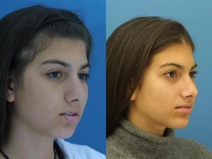 patient-11970-rhinoplasty-nosejob-before-after-4