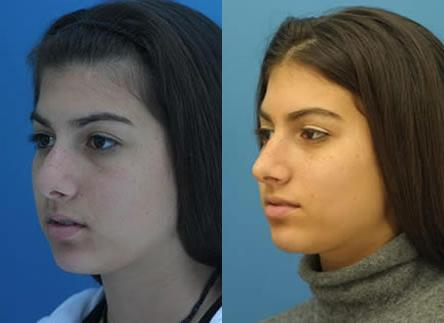 patient-11970-rhinoplasty-nosejob-before-after-5