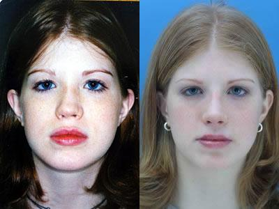 patient-11977-rhinoplasty-nosejob-before-after-2