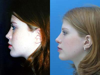 patient-11977-rhinoplasty-nosejob-before-after-3