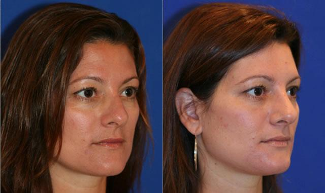 patient-11985-rhinoplasty-nosejob-before-after-1