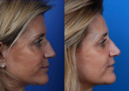 patient-11988-rhinoplasty-nosejob-before-after-1