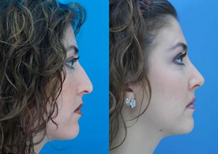 patient-11991-rhinoplasty-nosejob-before-after-3