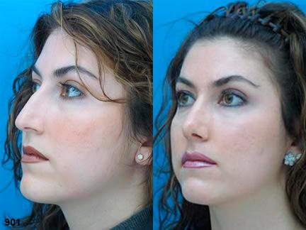 patient-11991-rhinoplasty-nosejob-before-after-4
