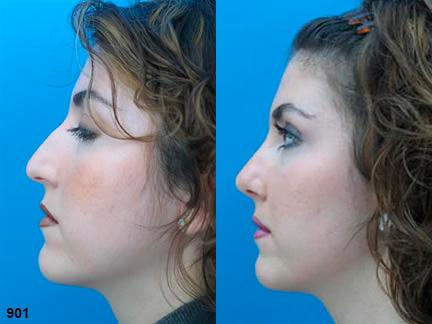 patient-11991-rhinoplasty-nosejob-before-after-5