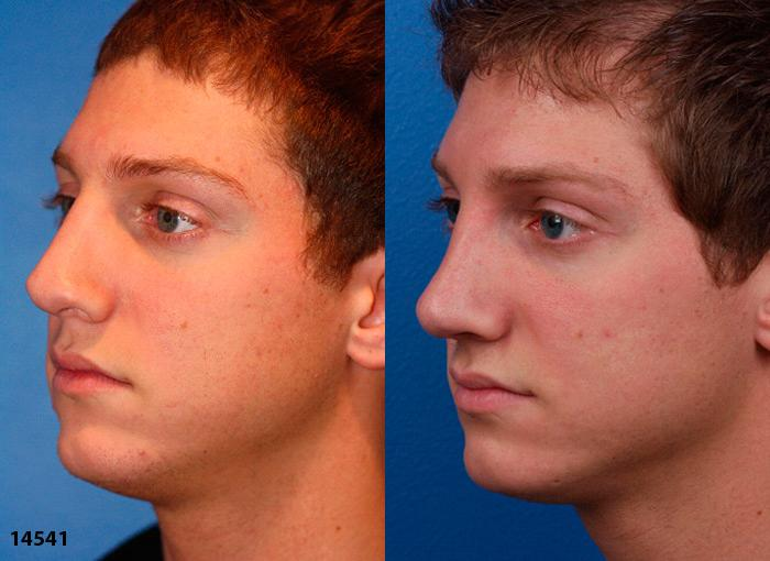 patient-11998-rhinoplasty-nosejob-before-after-1