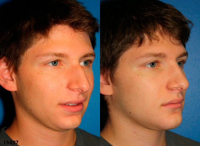 patient-12001-rhinoplasty-nosejob-before-after-2