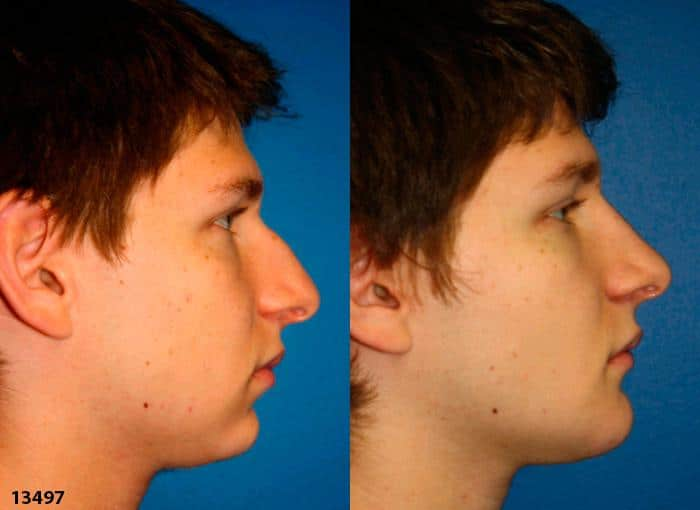 patient-12001-rhinoplasty-nosejob-before-after-3