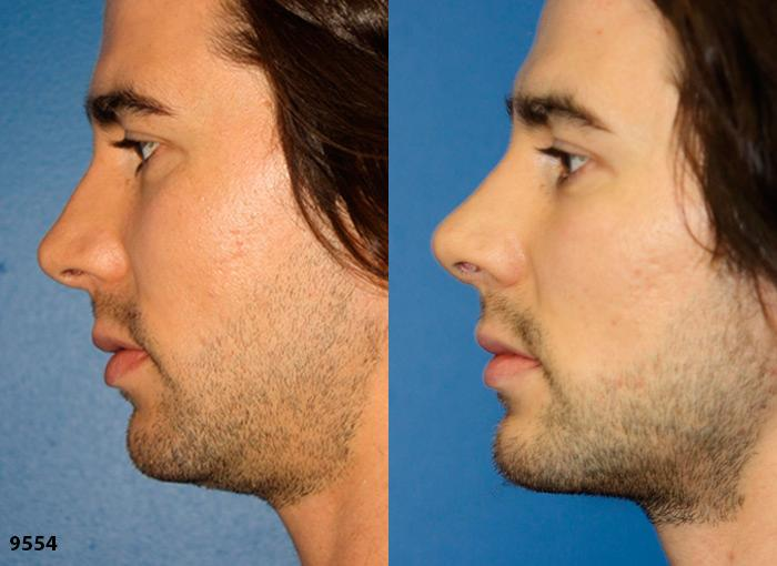 patient-12006-rhinoplasty-nosejob-before-after-1