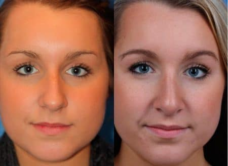 patient-12012-rhinoplasty-nosejob-before-after-2