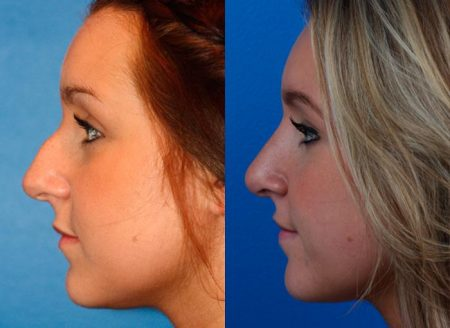 patient-12012-rhinoplasty-nosejob-before-after-3