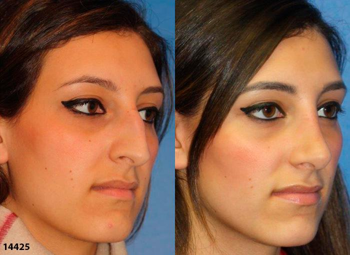patient-12017-rhinoplasty-nosejob-before-after-5