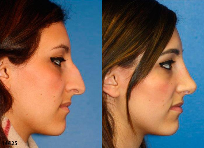 patient-12017-rhinoplasty-nosejob-before-after-7