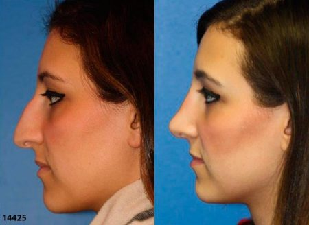 patient-12017-rhinoplasty-nosejob-before-after-8