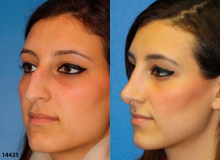 patient-12017-rhinoplasty-nosejob-before-after-9